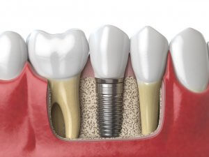 Dental Implant Placed Between Two Healthy Teeth With Bone Grafting