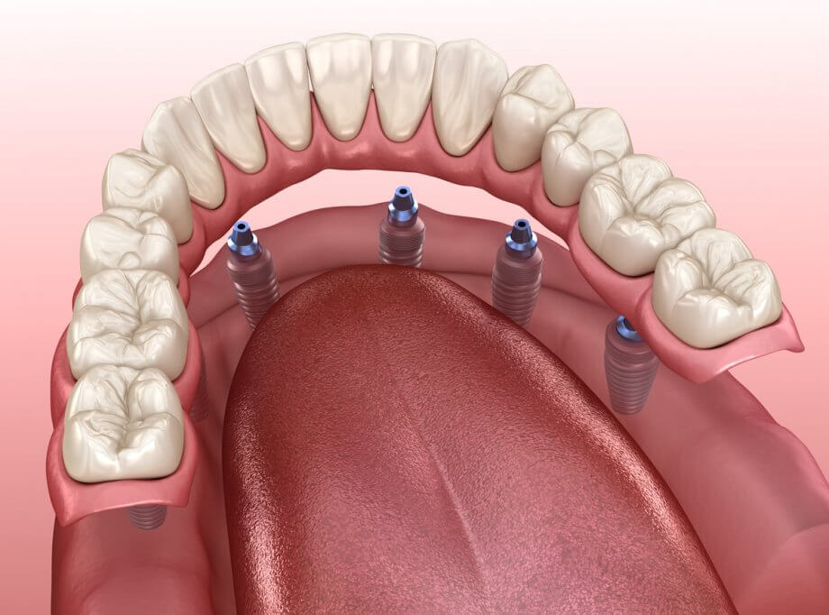 Graphic Showing Dental Implants