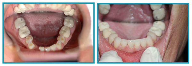 Before & After Ceramic Crowns in Scarsdale