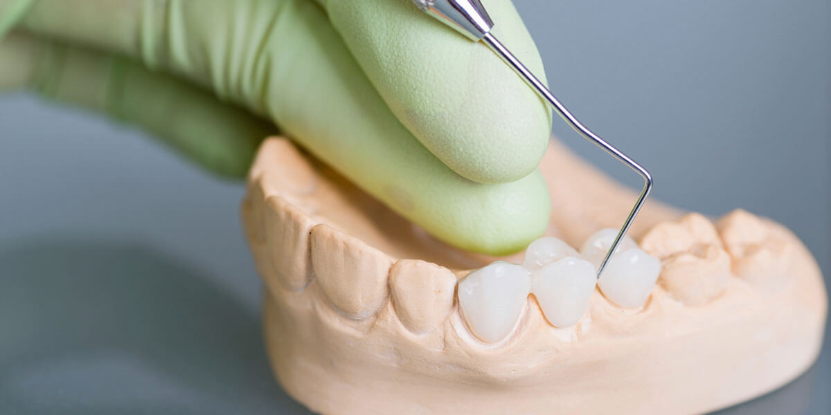 Dental Bridges in Scarsdale, NY