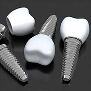 Dental Implants in Scarsdale, NY